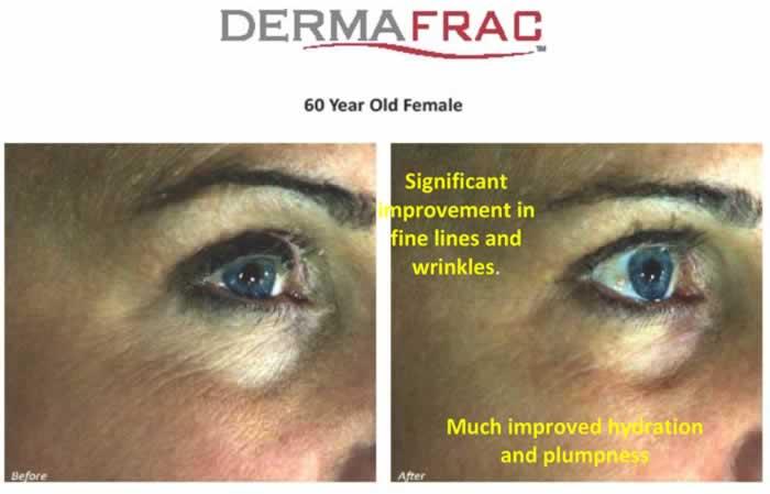 60-yr-old-female