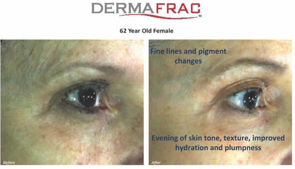 62-yr-old-female