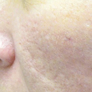 Acne-scar-treatment-after1-wr