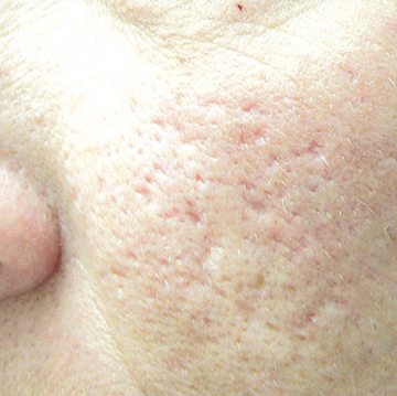 Acne-scar-treatment-before1-wr