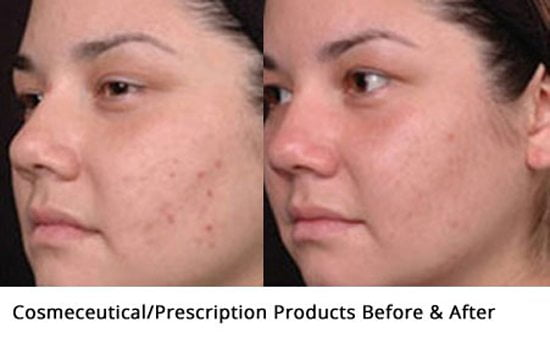 Acne-skincare-products-before-and-after1-wr