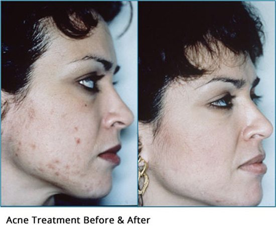 Acne-treatment-before-and-after1-wr