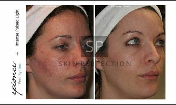 Combo-photofacial-skin-peel-acne-treatment-1-wr