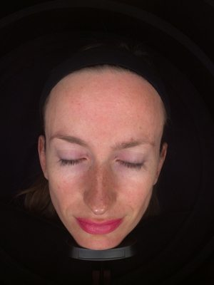 Laser-photofacial-before1-wr
