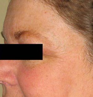 Laser-pigmentation-treatment-after1-wr