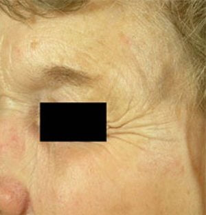 Laser-pigmentation-treatment-after2-wr