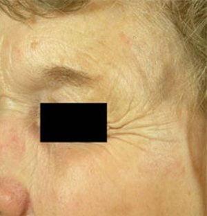 Laser-pigmentation-treatment-after2-wr
