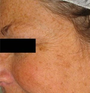 Laser-pigmentation-treatment-before1-wr