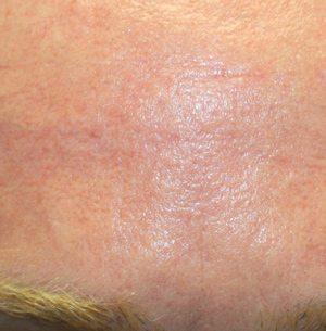 Laser-scar-treatment-after2-wr