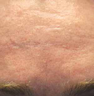 Laser-scar-treatment-before2-wr