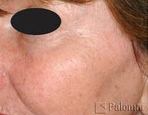 Laser-skin-resurface-treatment-after1a-wr