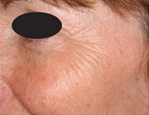 Laser-skin-resurface-treatment-before1a-wr