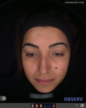 Skin-peel-acne-before2-wr