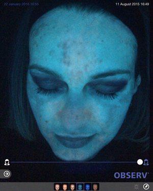 Skin-peel-pigmentation-after2-wr