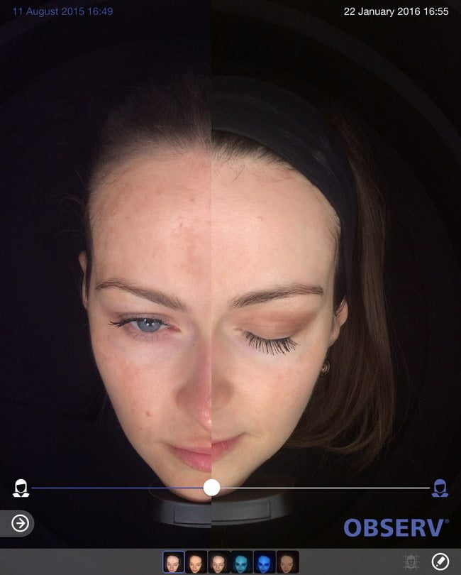 Skin-peel-pigmentation-before-and-after1-wr