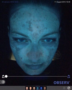 Skin-peel-pigmentation-before2-wr