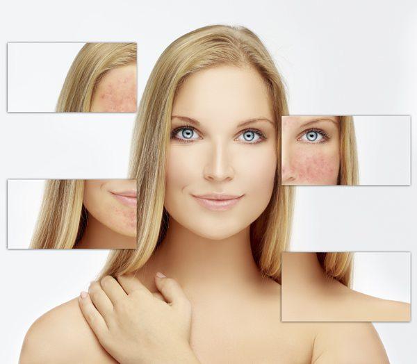 acne2-sp