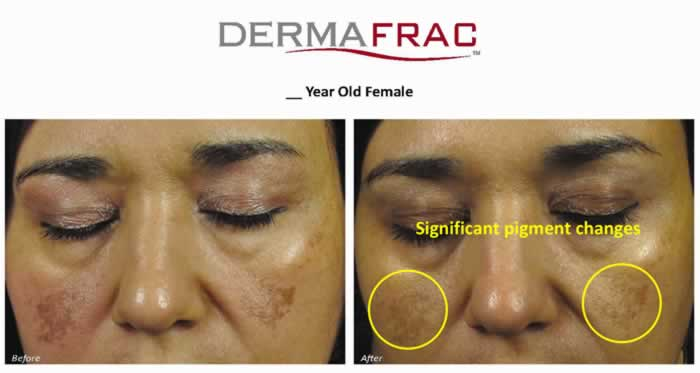 dermafrac-female