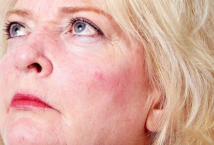Rosacea Treatment options