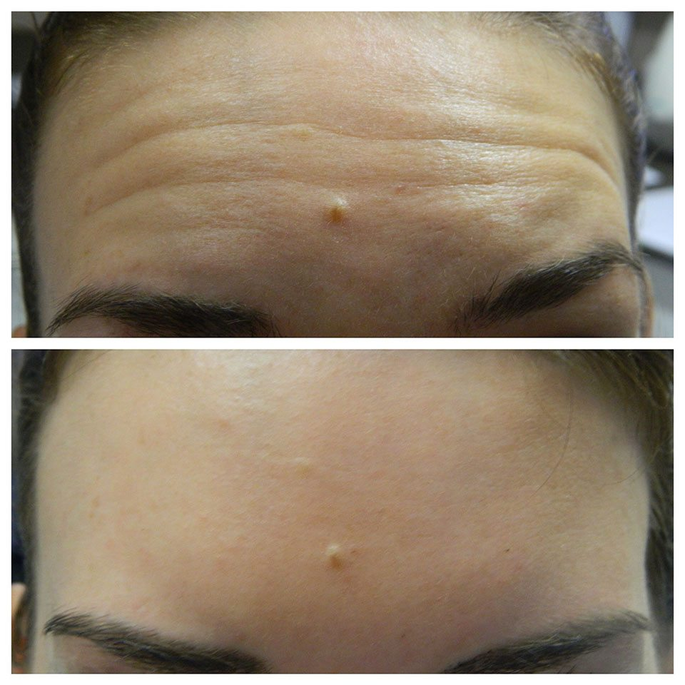 before and after wrinkle relaxing injections