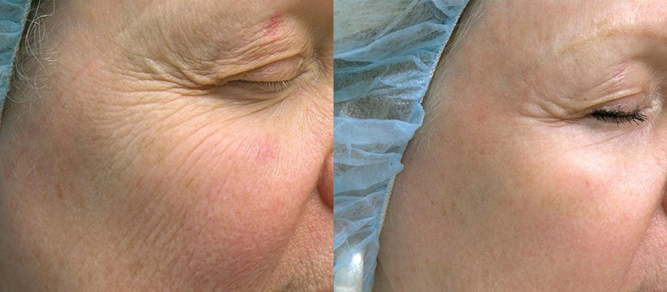 Before and after 1 treatment