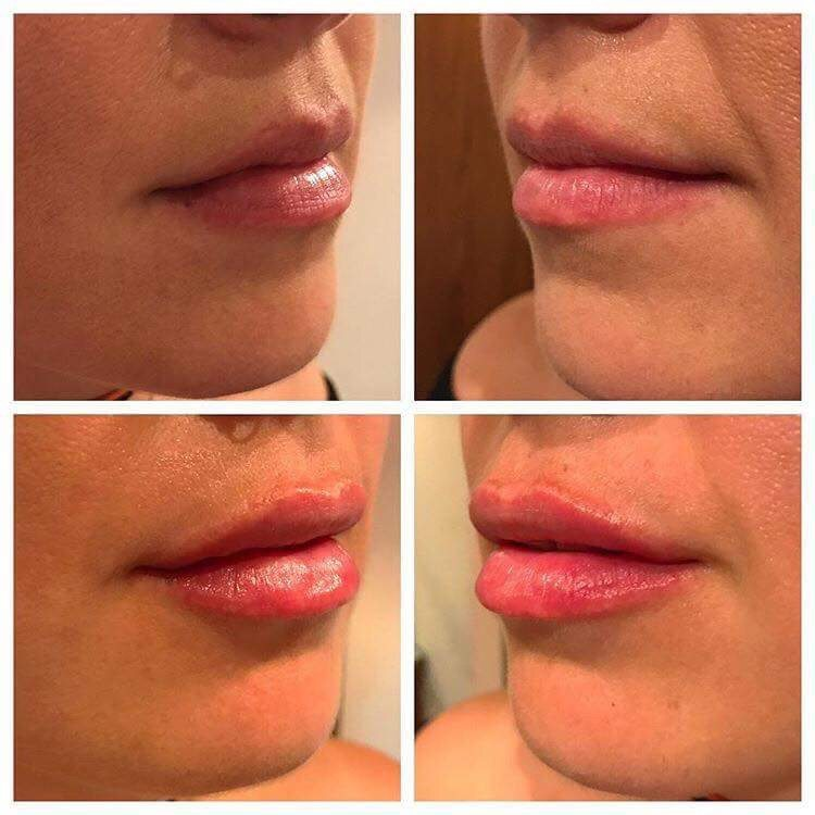Before after Lip Fillers