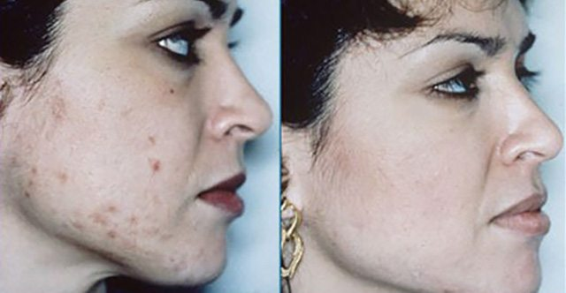 before and after acne treatments London
