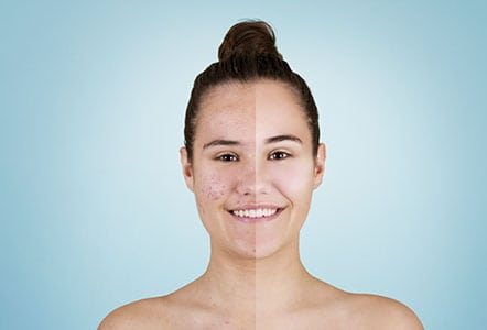 Will acne go away?