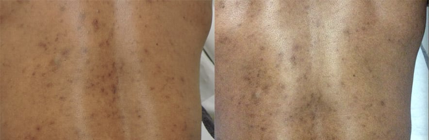 before and after acne treatment - peels - on back