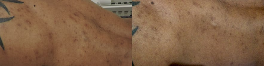 Before and after 3x peels treatment on back