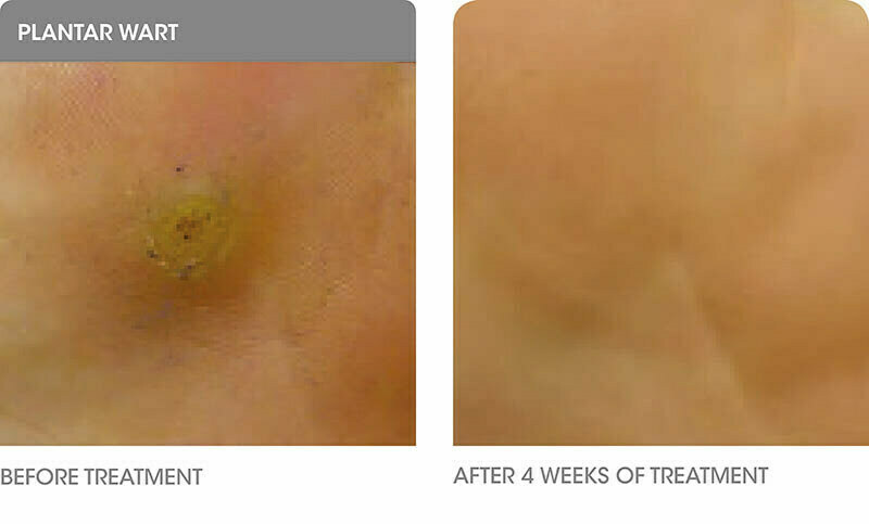 Before after Cryopen treatment for Plantar Wart