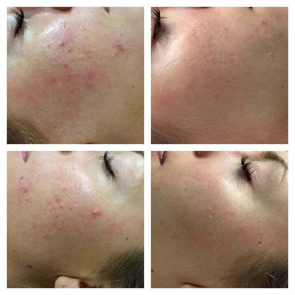 Dermapen results for acne