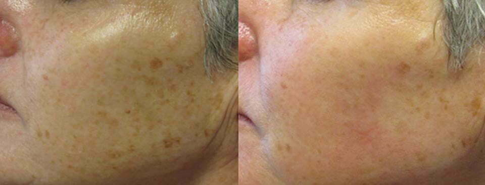 Dermapen results for pigmentation