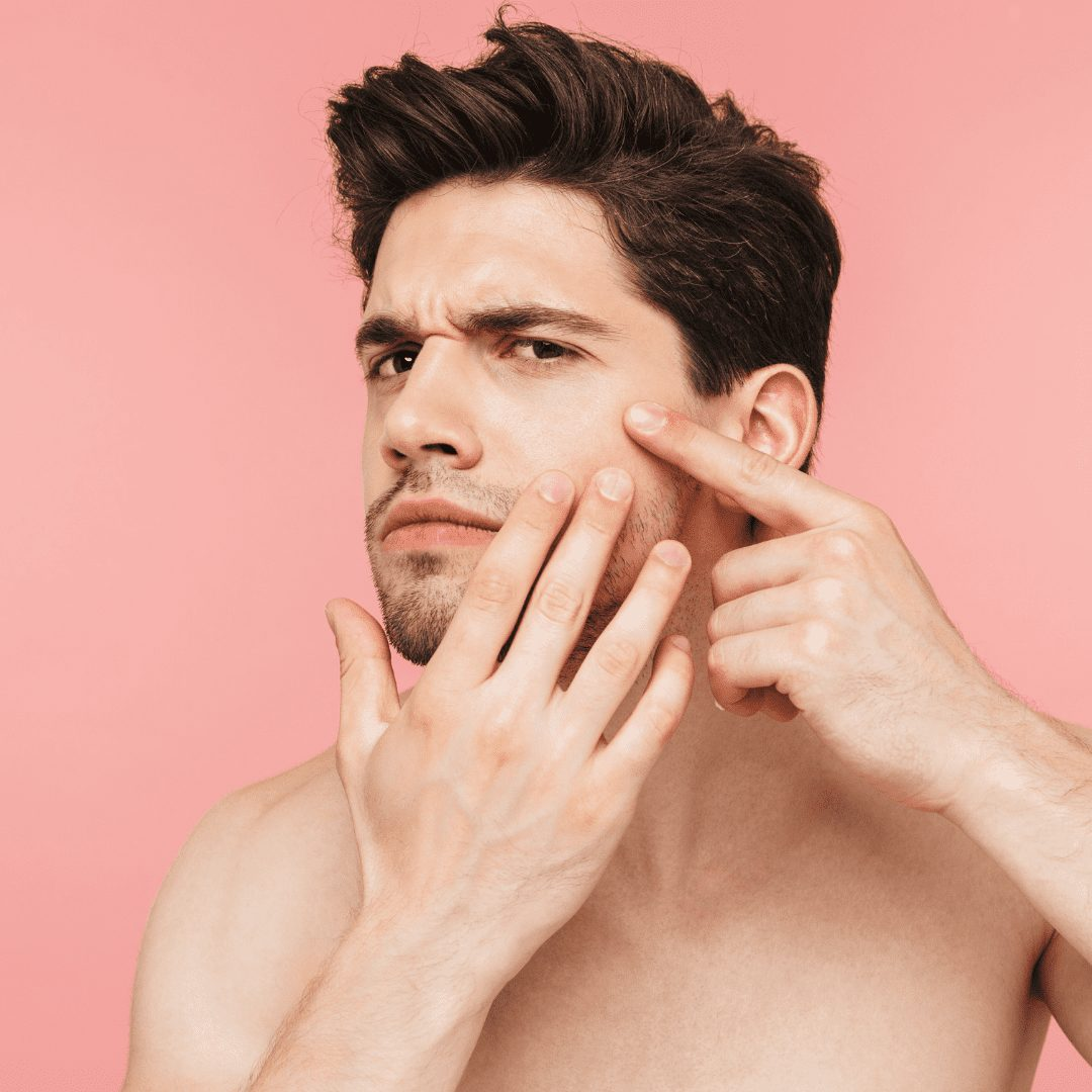 What acne treatments should you use?