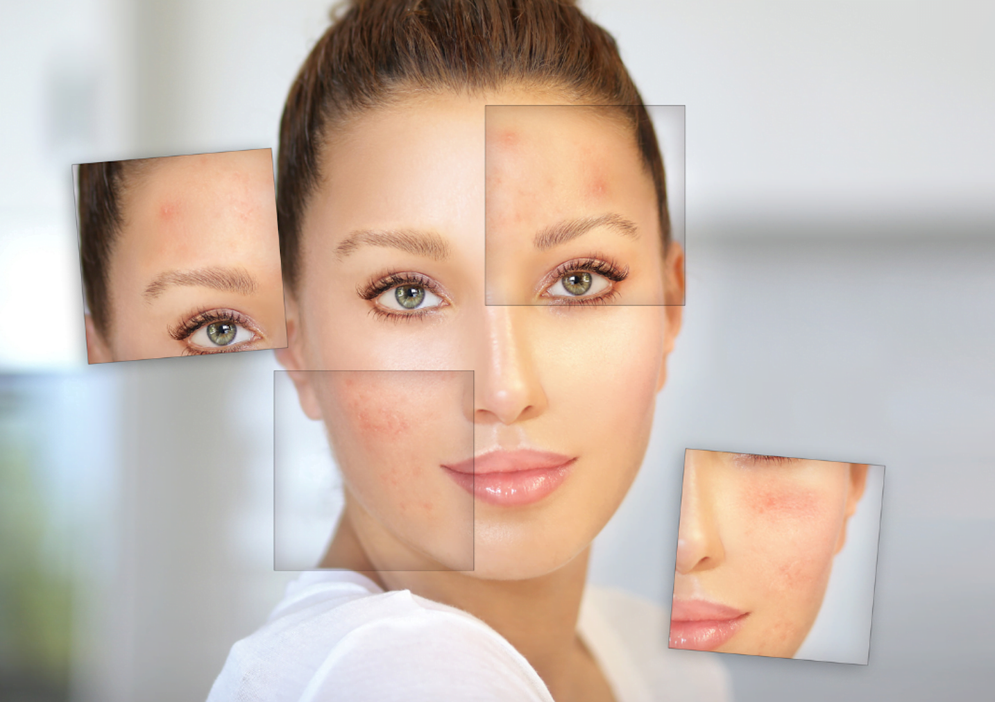 Can you prevent acne?