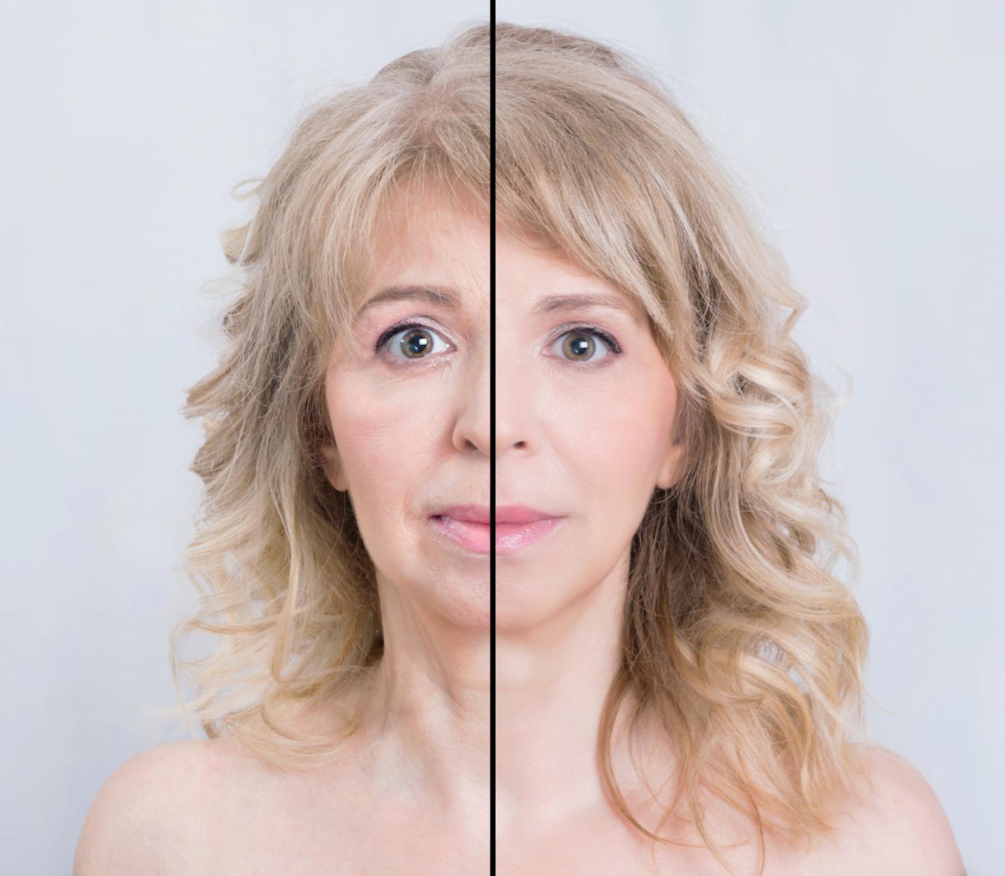 Are microneedling and microdermabrasion the same?