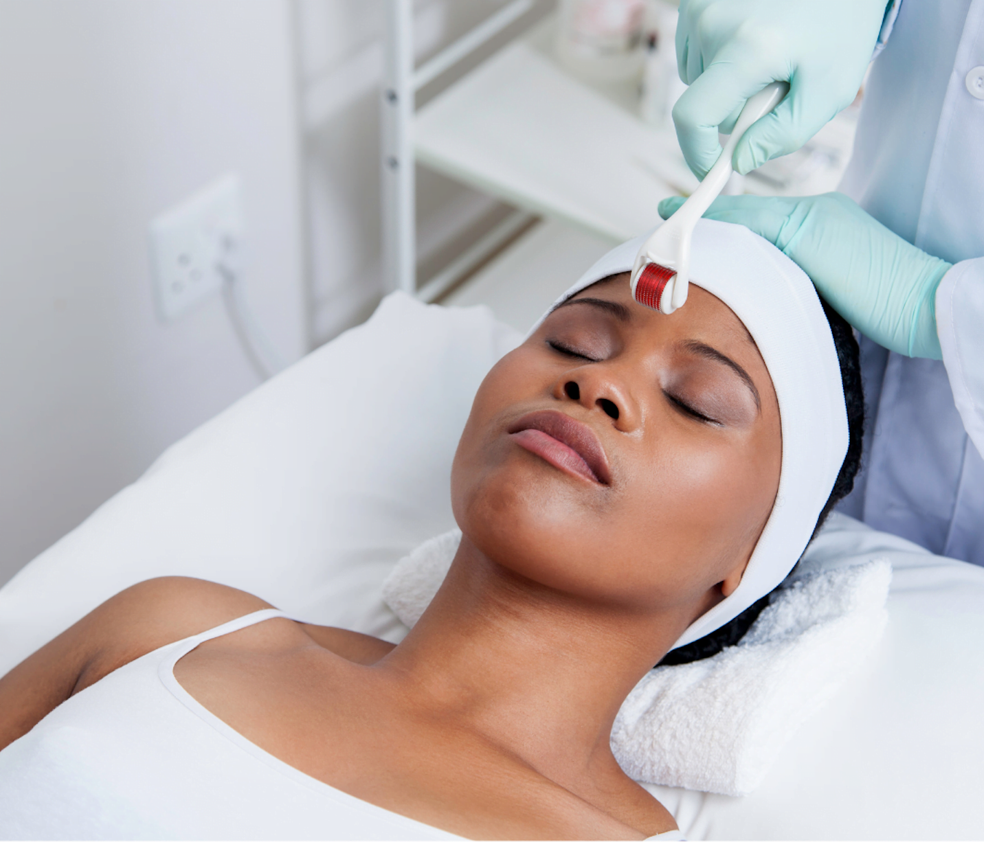 How microneedling helps acne? Skin Perfection London