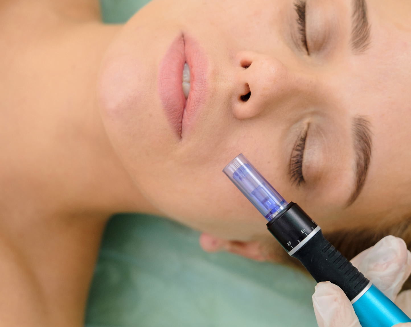 What microneedling does?