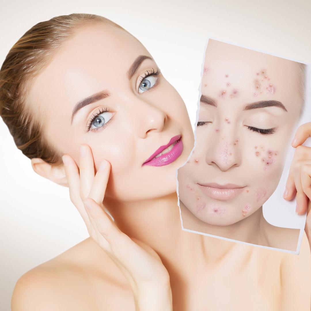 Can acne spread?
