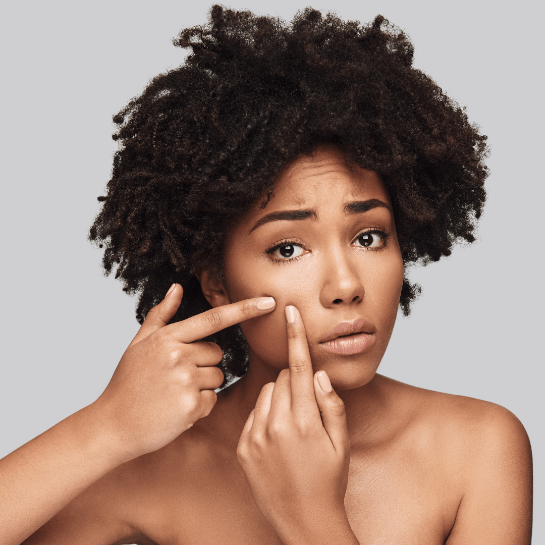 Can you get acne with PCOS?