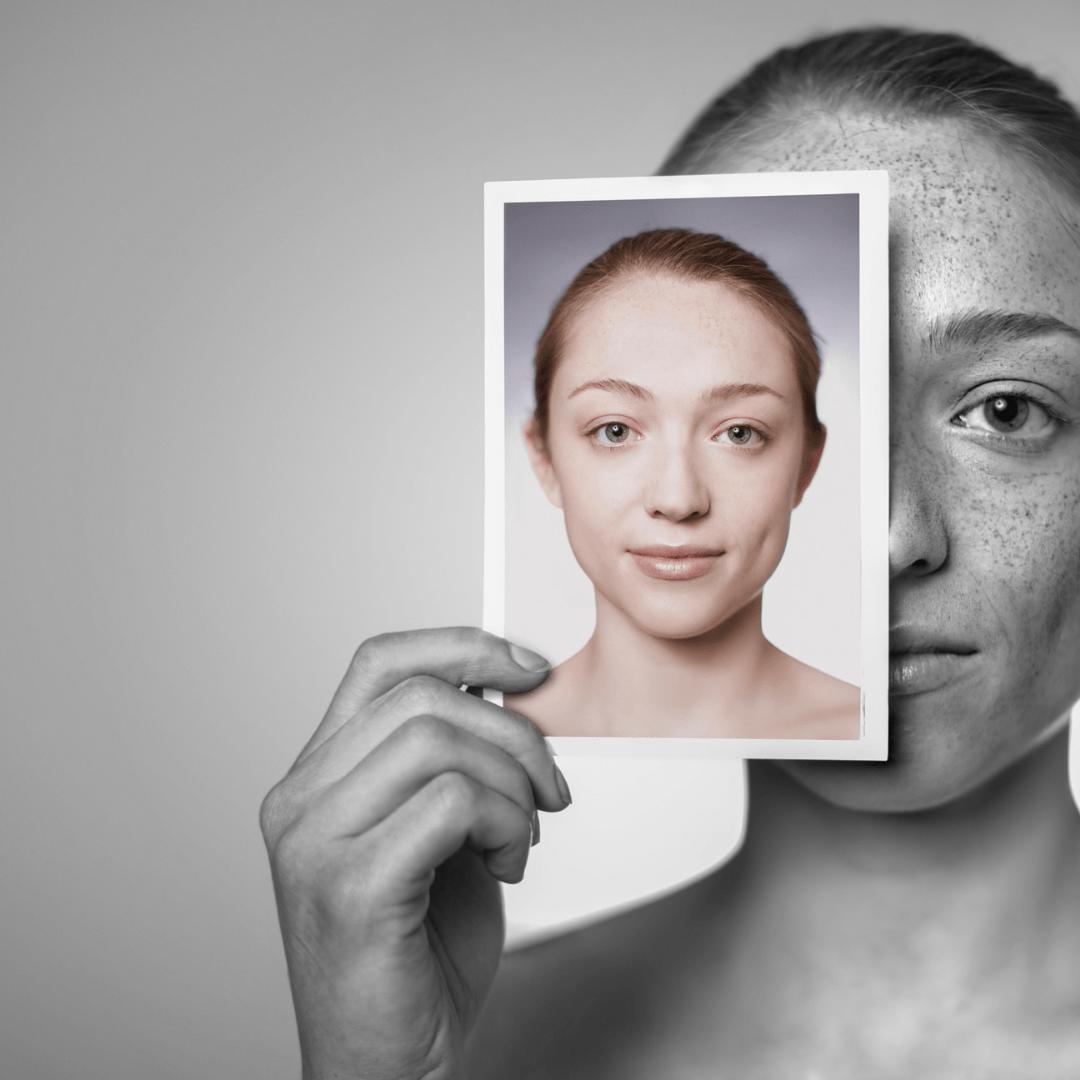 How do you fix sun damaged skin?