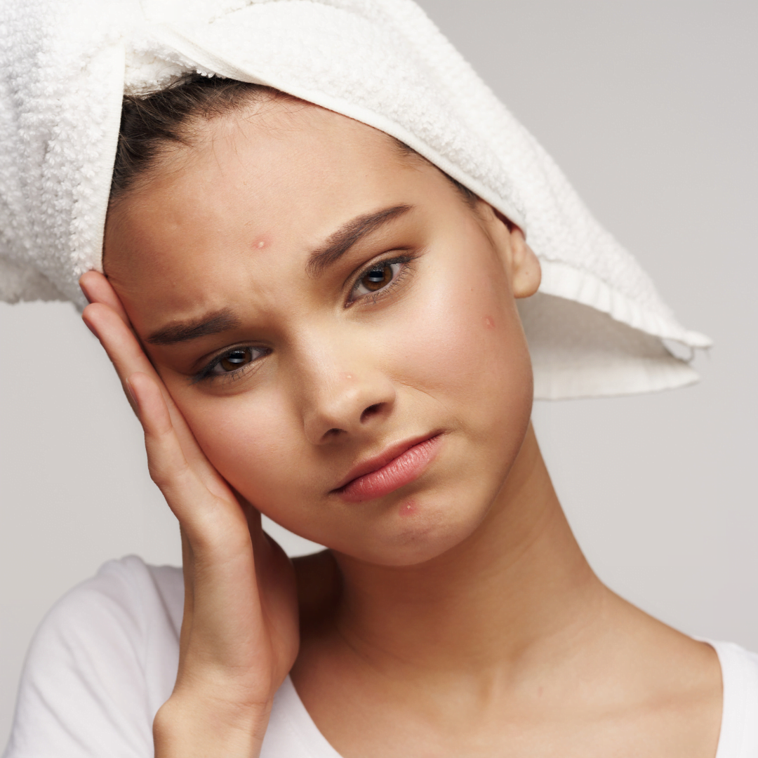 Will acne ever stop?