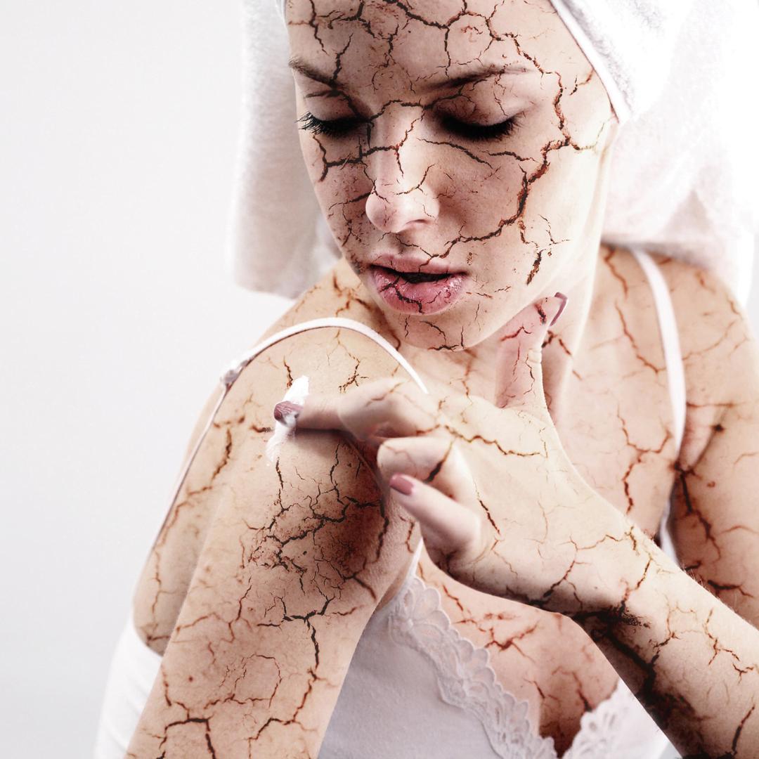 Can sun damage cause itchy skin?