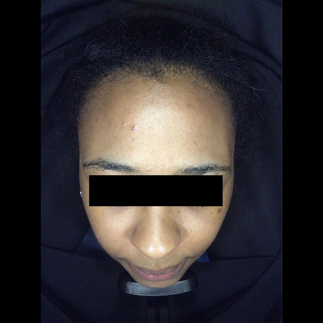 Acne, acne scarring, oily skin, breakouts, skin peels, dermapen, pigmentation Skin Perfection London After 2