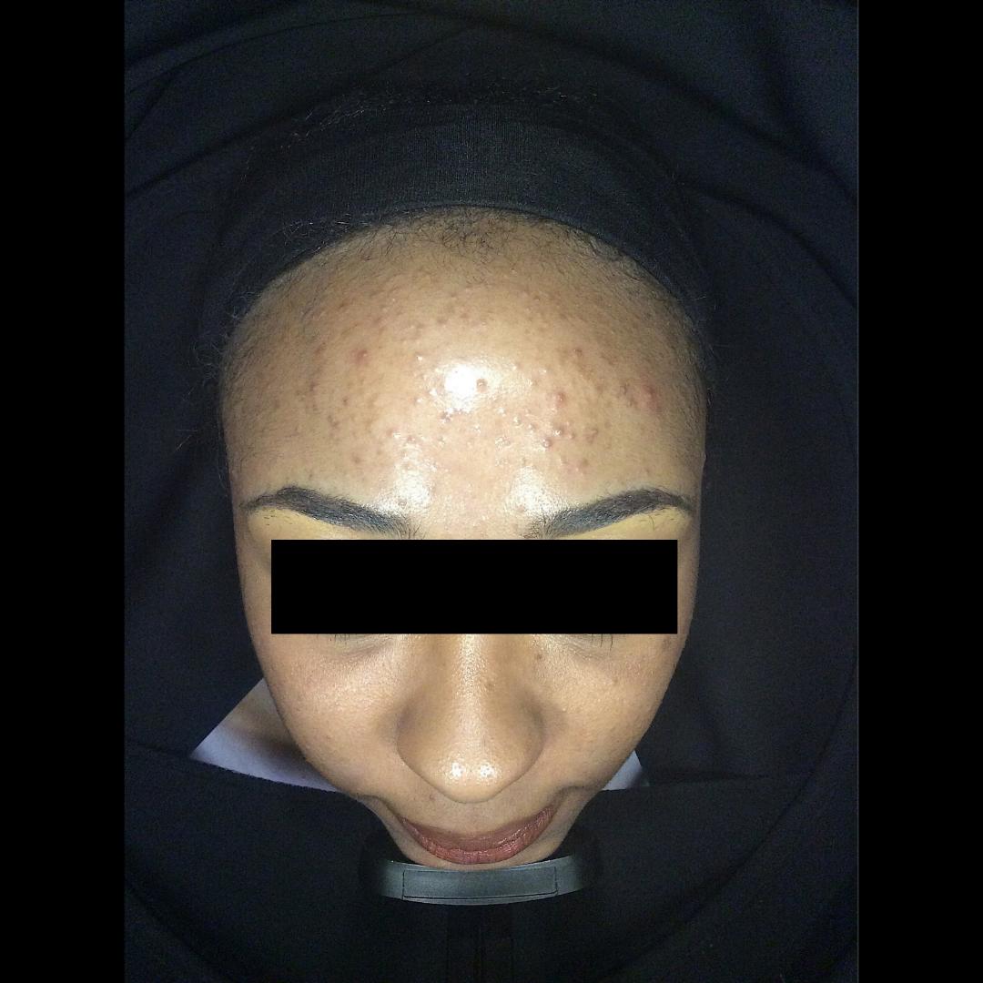 Acne, acne scarring, oily skin, breakouts, skin peels, dermapen, pigmentation Skin Perfection London Before 3