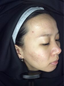 Acne, acne scarring, oily skin, skin peels - Skin Perfection London After 6