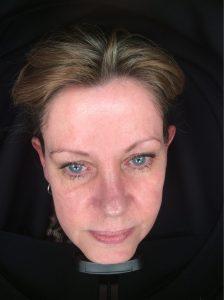 Sun damage, pigmentation, Photofacial rejuvenation Skin Perfection London After 1