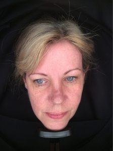 Sun damage, pigmentation, Photofacial rejuvenation Skin Perfection London Before 1