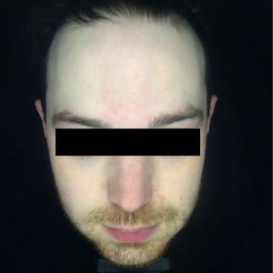 Sun damage, redness, pigmentation, broken veins, laser photofacial rejuvenation, skin peels After 1