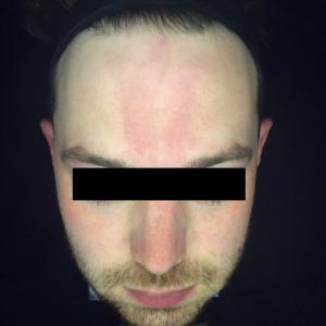 Sun damage, redness, pigmentation, broken veins, laser photofacial rejuvenation, skin peels Before 1